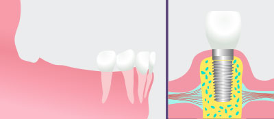 Dental Implants in East Ridge